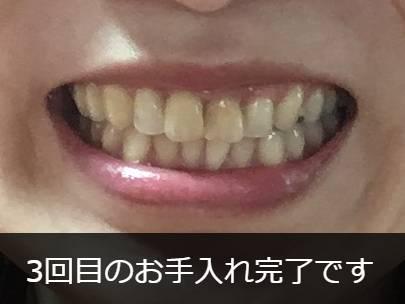 スパークリングイレーサー3回目完了後の歯